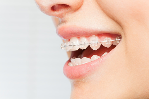 Pain From Braces: Causes & Pain Relief Options