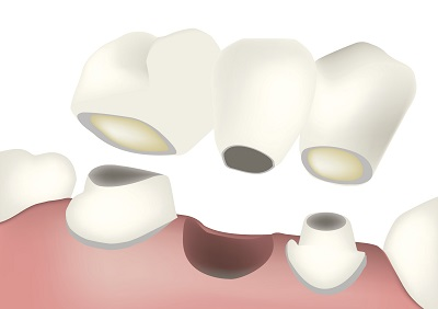 Diagram of a dental bridge from dentist in Salem, OR.
