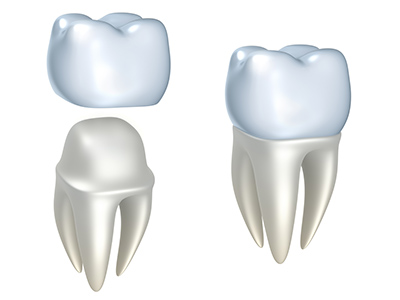 What Are the Different Types of Dental Crowns Used For?
