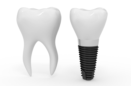 Dental Implant and Molar side by side at Salem Dentist, Oak Park Dental.