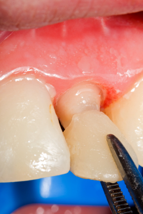 How Long to Expect Your Dental Veneers to Last