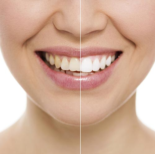 Teeth whitneing half smile at Oak Park Dental