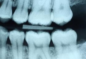 An x-ray of molars from a patient at Oak Park Dental in Salem, Oregon.